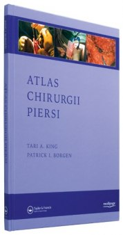 ATLAS CHIRURGII PIERSI (ATLAS OF PROCEDURES IN BREAST CANCER SURGERY) KING